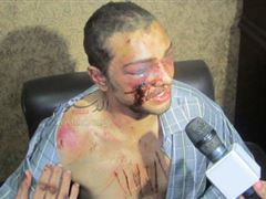 brotherhood torturing egyptians in rabaa