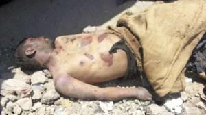 victims of muslim brotherhood torturing