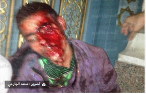 Egyptian citizen tortured inside the mosque in front of Etihadeya Palace by Muslim Brotherhood 4 December 2012