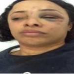 Ola Shahba member in the Popular Socialist Alliance Party in Egypt was held and beaten by Muslim Brotherhood in Etihadeya massacre 4 December 2012