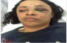 Ola Shahba member in the Popular Socialist Alliance Party in Egypt was held and beaten by Muslim Brotherhood in Etihadeya massacre 4 December 2012
