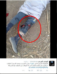 muslim brotherhood shot this egyptian citizen with 3 bullets in his foot
